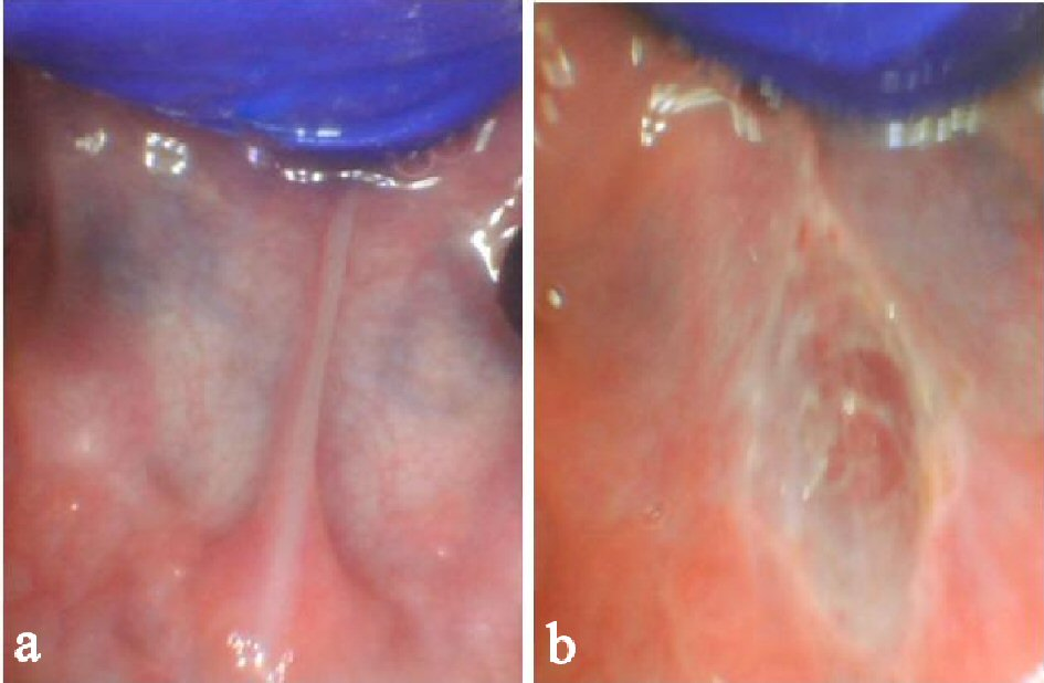 Speech and Feeding Improvements in Children After Posterior Tongue